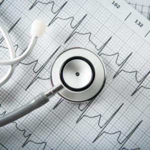 Na czym polega badanie EKG?