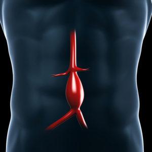 Tętniak aorty piersiowo-brzusznej