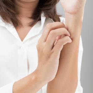 Choroby dermatologiczne skóry – wyprysk kontaktowy
