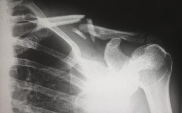 Osteoporoza- czym jest i jak się objawia?